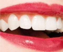 Help! Cosa fare per avere denti perfetti il giorno del matrimonio